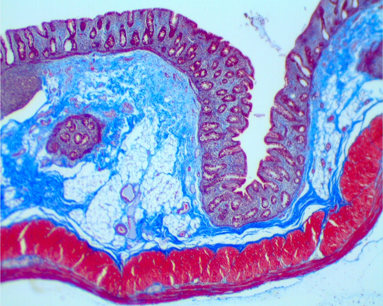Masson Trichrome GI tract.tif